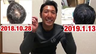 AGA薄毛治療始めて3カ月経過!驚くべき結果が、、、  薄发 Thin hair