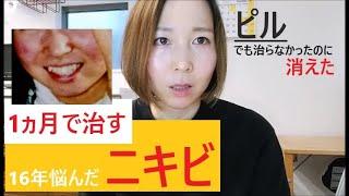 【ニキビ完治】重症ニキビが消えた食事療法【ピルでも治らなかった】