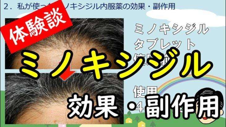 【体験談】ミノキシジル内服薬・外用薬の効果・副作用