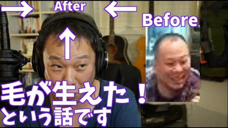【育毛成功】個人輸入 AGAに悩む40代が育毛に成功した話